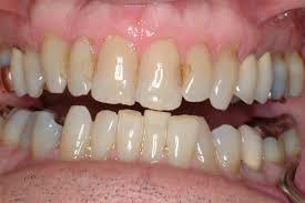 Smile Design Valrico St Petersburg Teeth Whitening Obrochta Dental Clinic