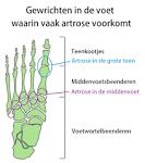 botten en gewrichten