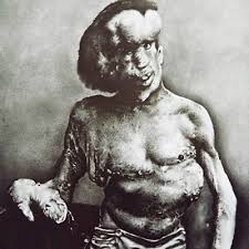 the elephant man.  The The Birth Of U201cThe Elephant Manu201d Born In Leicester England 1862 Joseph  Carey Merricku0027s Disfigurements First Surfaced Early Childhoodu2014notably  And Man S