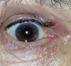 cutaneous horn of the eyelid