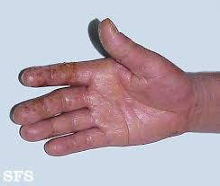 Itchy Palms (Inside of Hand) Causes and Pictures | Healthhype.com