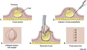 overview of epidermoid cyst sciencedirect