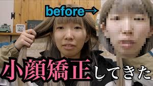 顔でかい系ブス人生初の小顔矯正に行った時の話 Youtube