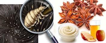 Resultado de imagen para Remedios naturales para los piojos (pediculosis)