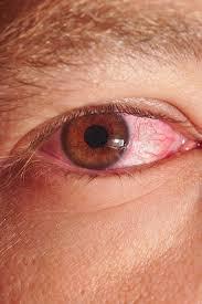 pinkeye conjunctivitis guide causes