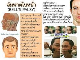 Bell palsy คือ
