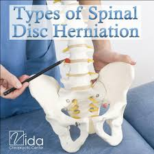 Vida Chiro Types Of Spinal Disc Herniation Vida Chiropractic Center