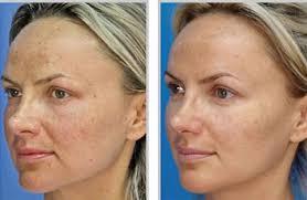 laser skin peeling on face