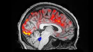 How Deep <b>Sleep</b> May Help The Brain Clear Away Toxins ...