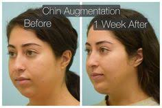 Chin Implant Size Chart 37 Best Chin Implant Images In 2019 Chin Implant Facial