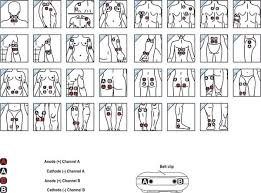 Tens Machine Pad Placement Chart Pin By Gail Griffin On Tens Unit Tens Unit Placement Tens