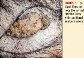 co2 laser excision of skin tumors