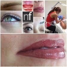 semi permanent lip treatments