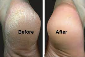 Hasil carian imej untuk kulit kaki kering