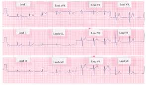 Ecg Chart Examples Electrocardiogram Ecg Ekg Definition Readings Procedure