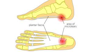 plantar fasciitis treatment massage
