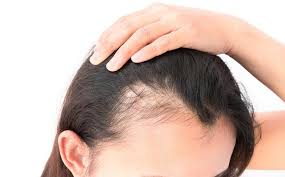 Female Pattern Hair Loss Best The Possible Causes Of Female Pattern Baldness Or Hair Loss In Women
