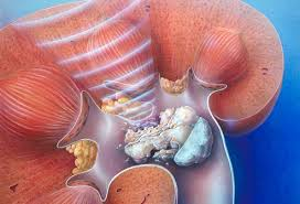 Kidney Stone Pictures Symptoms Causes Treatments And