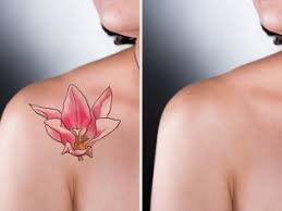 Image result for tattoo removal
