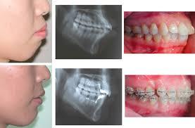 in orthodontics