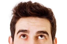 Male Pattern Baldness Cure Classy Male Pattern Baldness Cure And Treatment What Causes And Signs Of