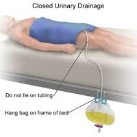 Bladder Catheterisation Urinary Catheterization Wikipedia