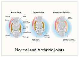 Pathophysiology Of Osteoarthritis In Flow Chart Osteoarthritis And Rheumatoid Arthritis 2012