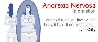 anorexia nervosa research paper essay topics essayagents anorexia nervosa research paper