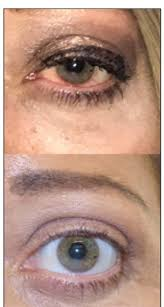 management of thyroid eye disease