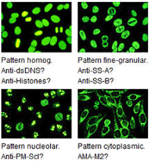 Ana Pattern Homogeneous Enchanting Indirect Immunofluorescence An Easy And Modern Method