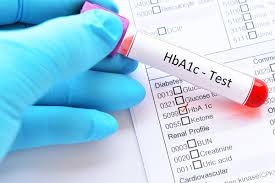 A1c To Eag Conversion Chart A1c Calculator What It Measures Ranges Tips More