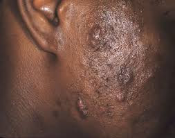acne or ingrown hair