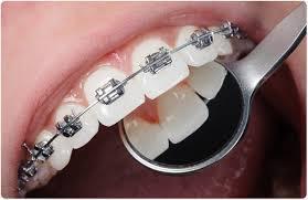 risks of dental braces