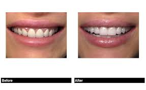 Perfect Porcelain Veneer Tooth Shapes For Your New Smile