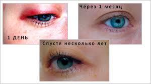 межресничный татуаж глаз фото до и после фото