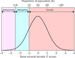 Diagnosis Of Osteoporosis And Assessment Of Fracture Risk