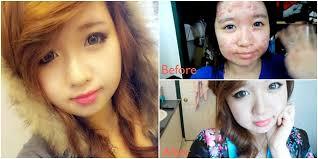 terapi obat buat kulitku berjerawat plus tutorial makeup