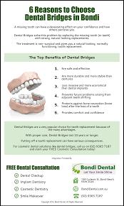 6 Reasons to Choose Dental Bridges in Bondi | Bondi Dental