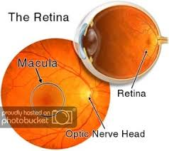 the macula normally lies flat against the back of the eye an epiretinal membrane macular pucker is when wrinkles creases or bulges form on the macula