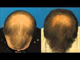 how to stop hair loss and regrow it the natural way how much zinc to stop hair loss