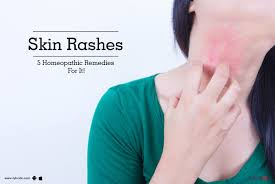 Skin Rashes - 5 Homeopathic Remedies For It! - By Dr. V.K. Pandey ...
