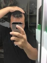 がっつりm字ハゲの男だけど似合う髪型あるかっこいいヘアスタイル教え