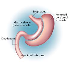 Sleeve gastrectomy | Providence Oregon