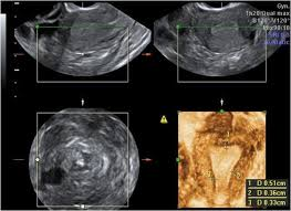 Since the endometrial overgrowth will break down and bleed in the same way that it would during a normal menstrual ultrasound is a technology in which sound waves create detailed images. 3d Ultrasound Assessment Of Endometrial Junctional Zone Anatomy As A Predictor Of The Outcome Of Icsi Cycles European Journal Of Obstetrics And Gynecology And Reproductive Biology