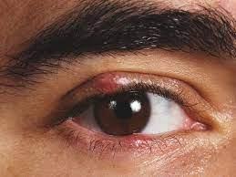 internal stye symptoms diagnosis