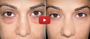 actually using baking soda to get rid of your under eye bags is a terrible idea