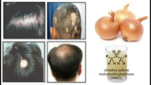 Onion Juice Cure Hair Loss And Promote Hair Regrowth 100