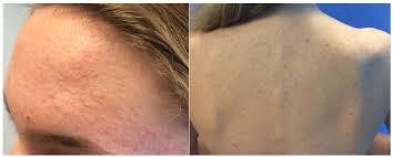 Is it acne or Pityrosporum folliculitis? | Dermatology Times