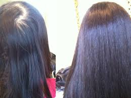Female Pattern Hair Loss Custom Male Pattern Baldness Solution Newton MA Patch