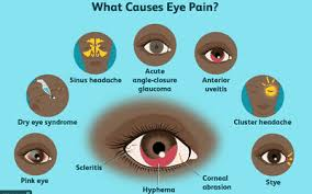 Doctors Note For Pink Eye Red Eyes Reasons For Bloodshot Eyes